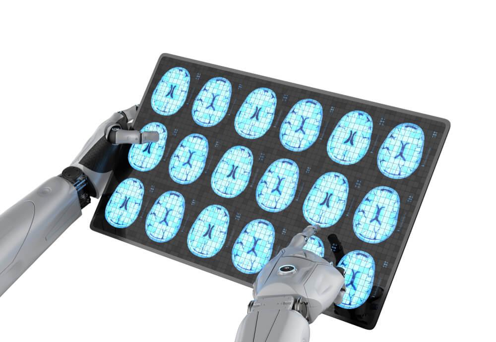 AI Alzheimer2
